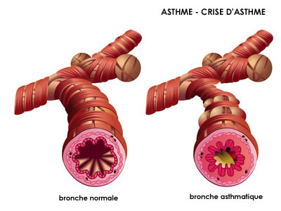 Asthme : causes, symptômes & traitements | Creapharma