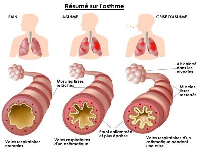Résumé asthme infographie