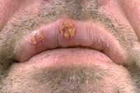 Symptômes herpès labial