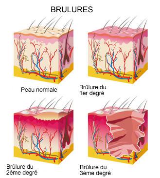 brulures-infographie