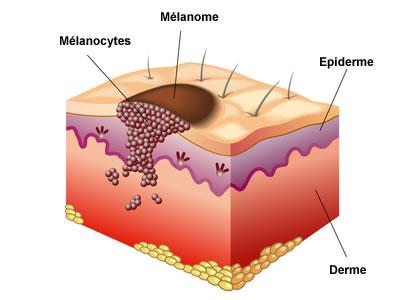 Cancer de la peau carcinome et m lanome creapharma - Peau qui brule comme un coup de soleil ...
