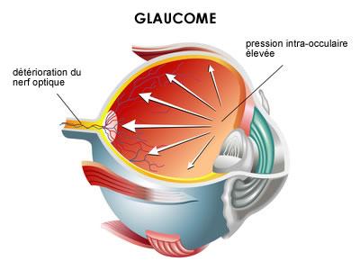 L'utilisation de statines serait associée à un risque moins élevé de glaucome primitif à angle ouvert