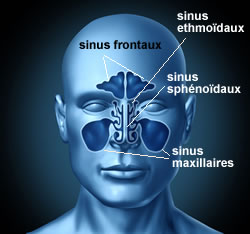 Définition sinusite