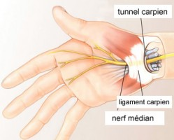 8 problèmes courants qui touchent la main