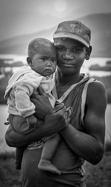 Épidémie de rougeole : plus de 19 000 cas et 60 morts à Madagascar