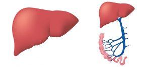 Stéatose hépatique
