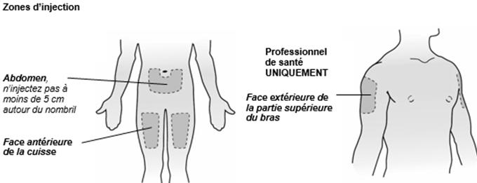 Orencia®, solution pour injection sous-cutanée (stylo pré-rempli) zone d'injection